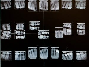 multiple dental x-rays