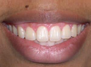 Smile Closeup