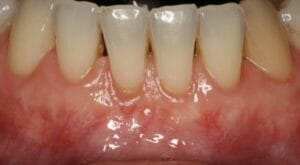 Allograft after