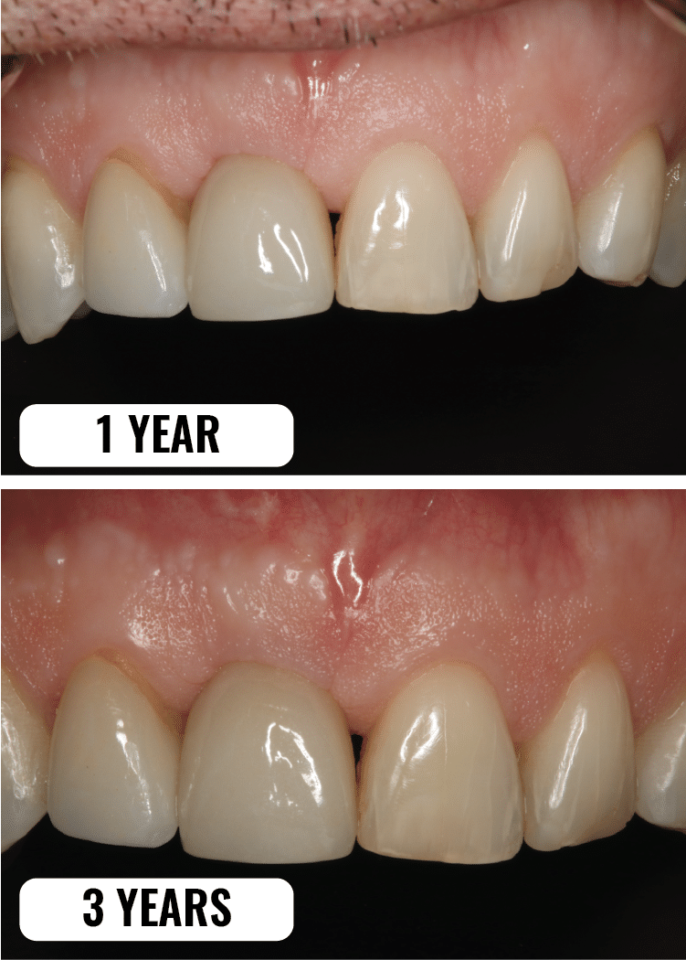 1year_3year_dental_implant