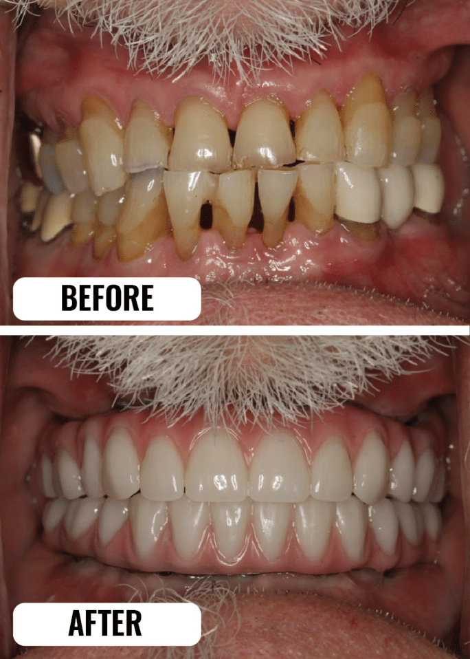 Modern_Perio_Full_mouth-restoration
