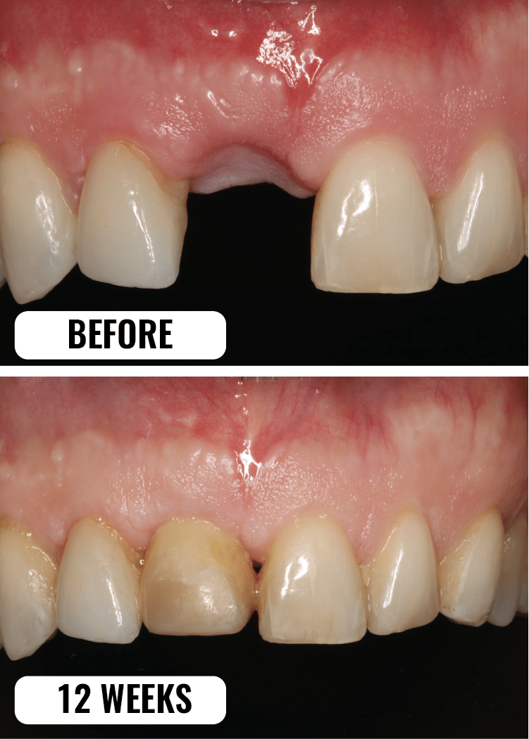 before_12weeks_dental_implant