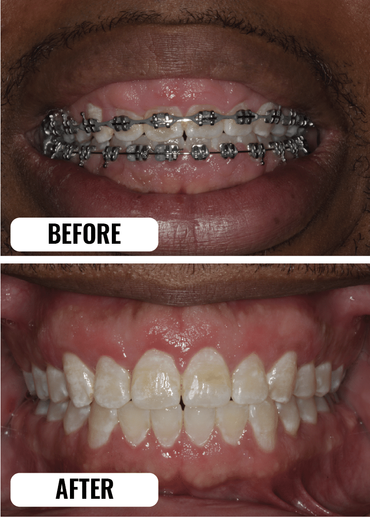 aesthetic crown lengthening