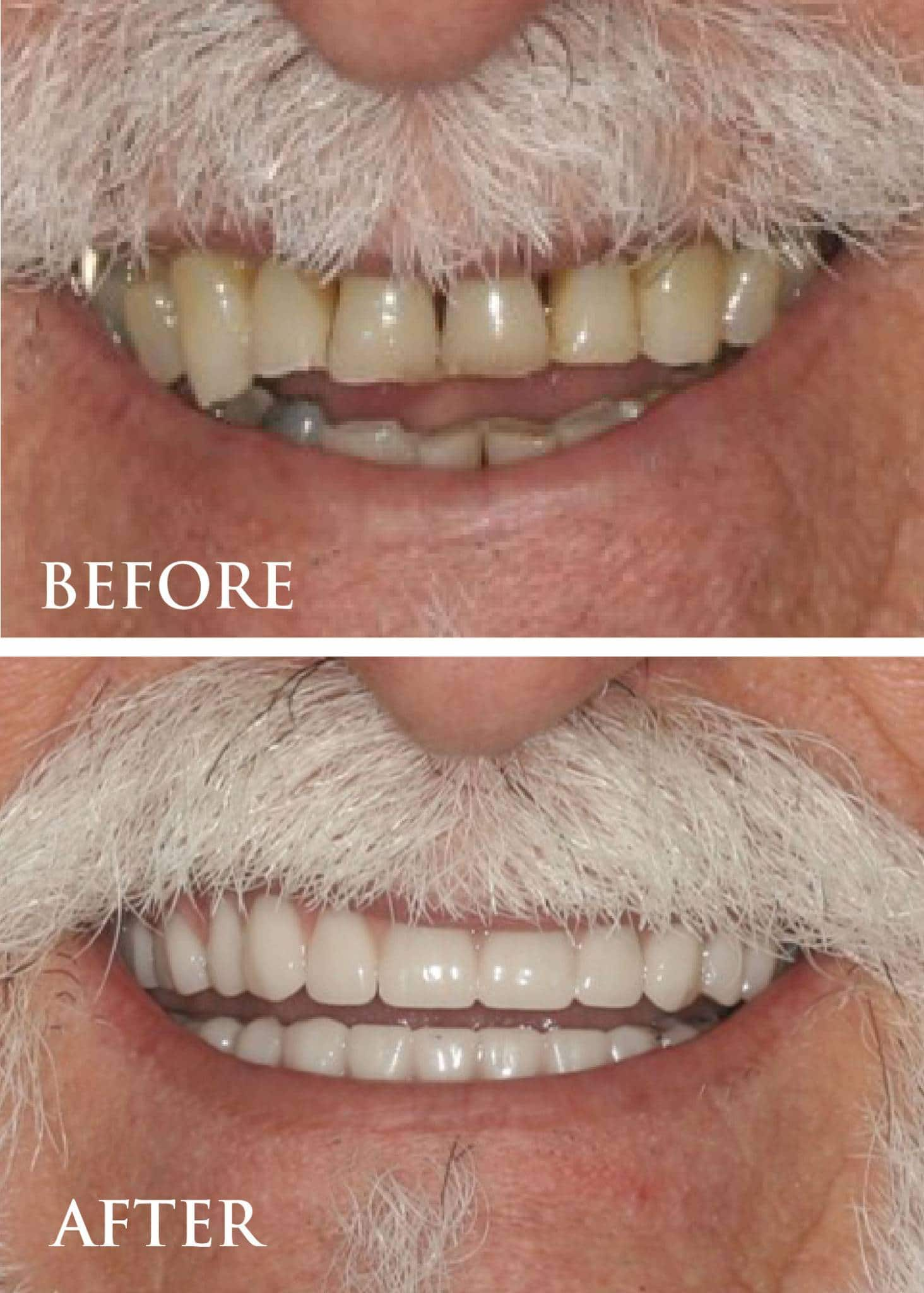 Modern_Perio_Before_After_full_mouth
