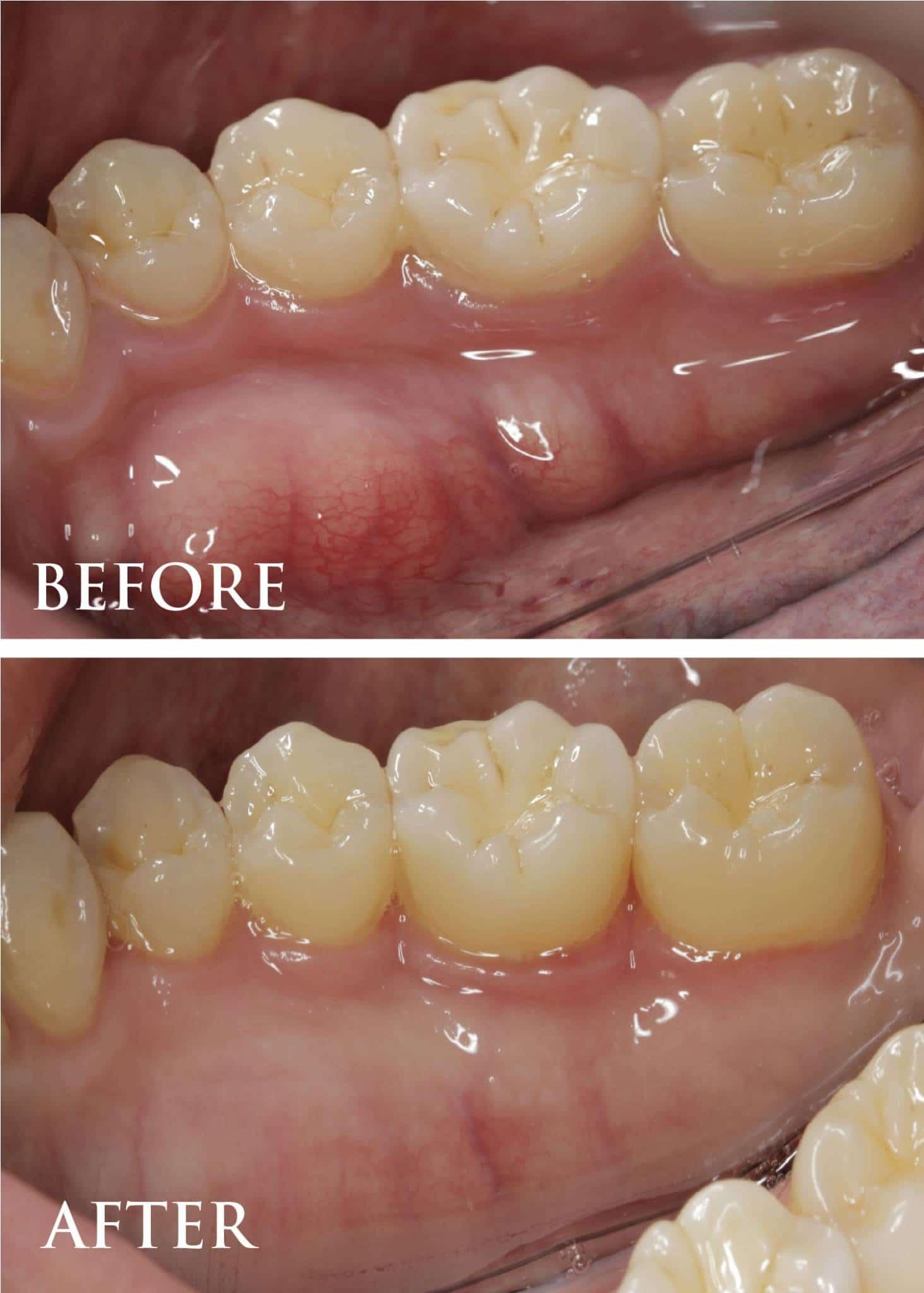 gum tissue