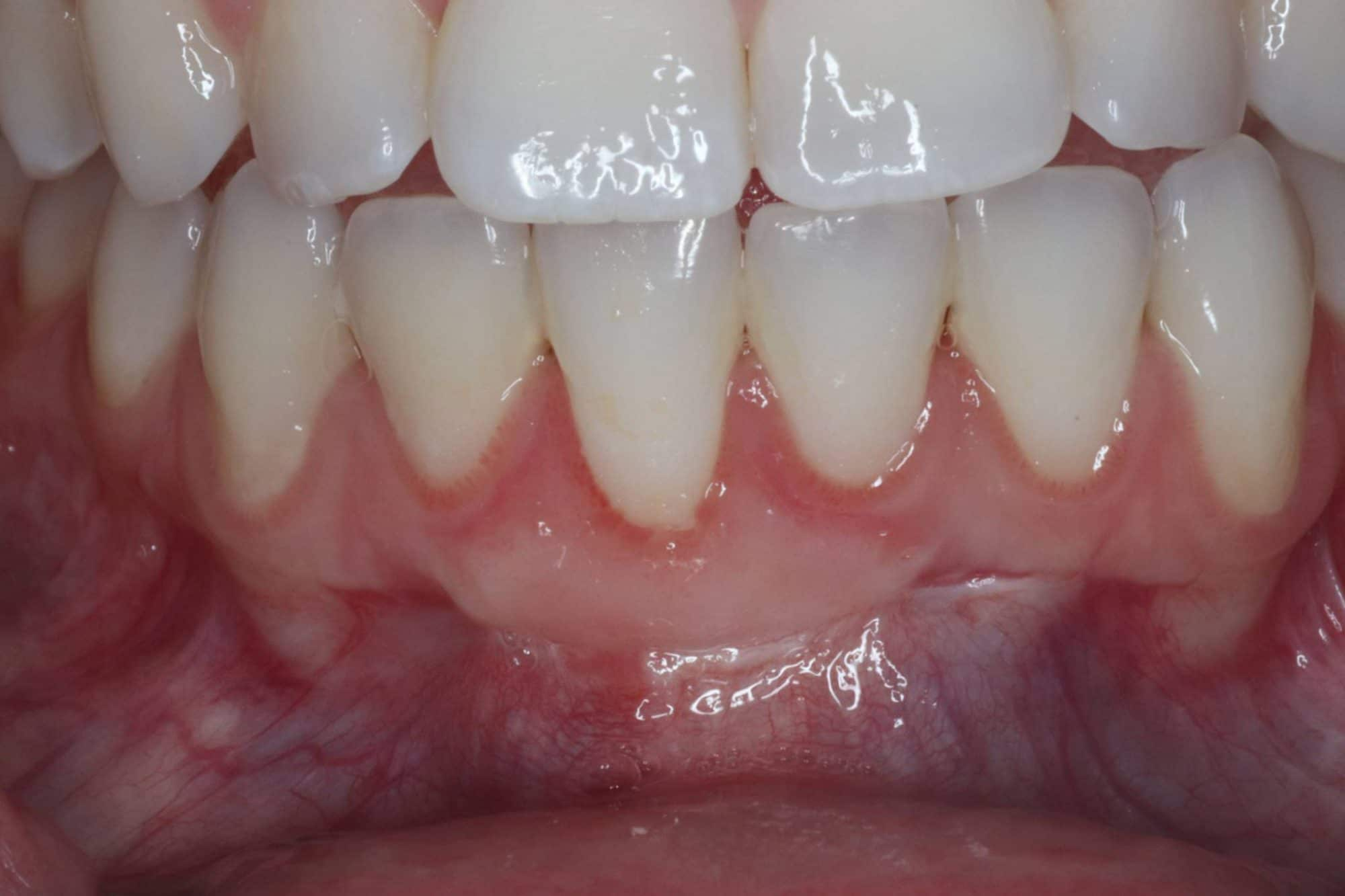 after - gingival grafting