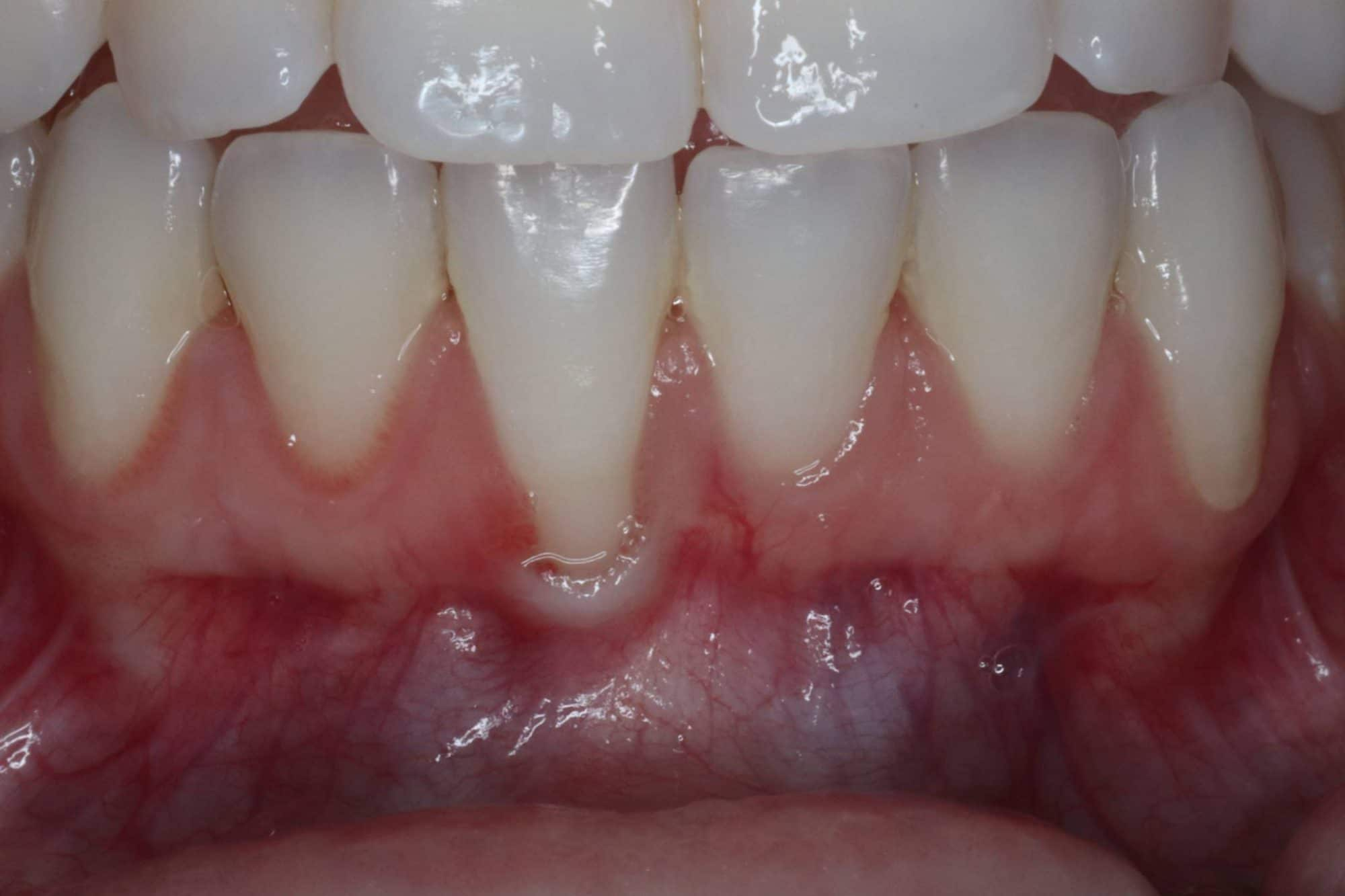 before - gingival grafting