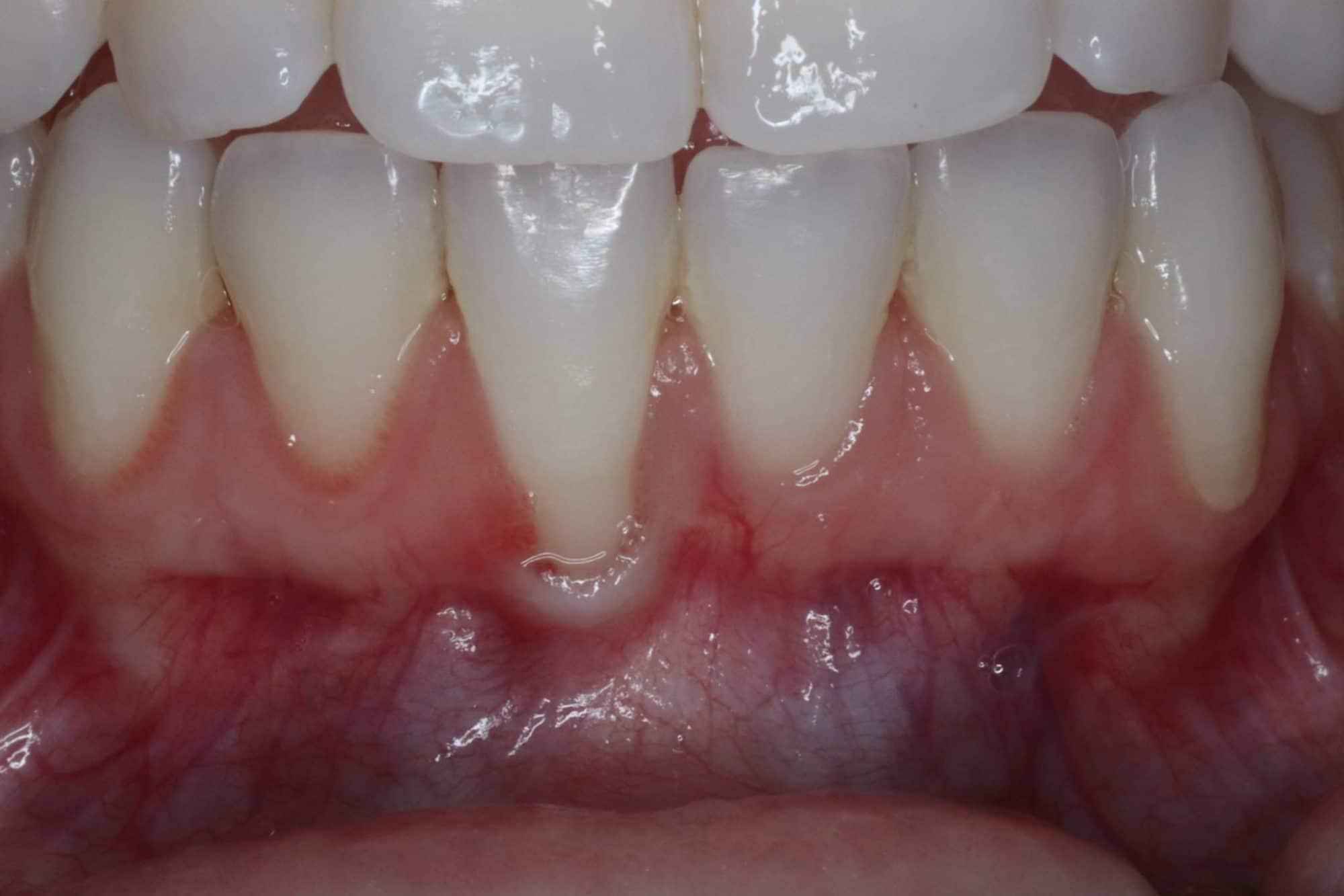 before - gingival grafting